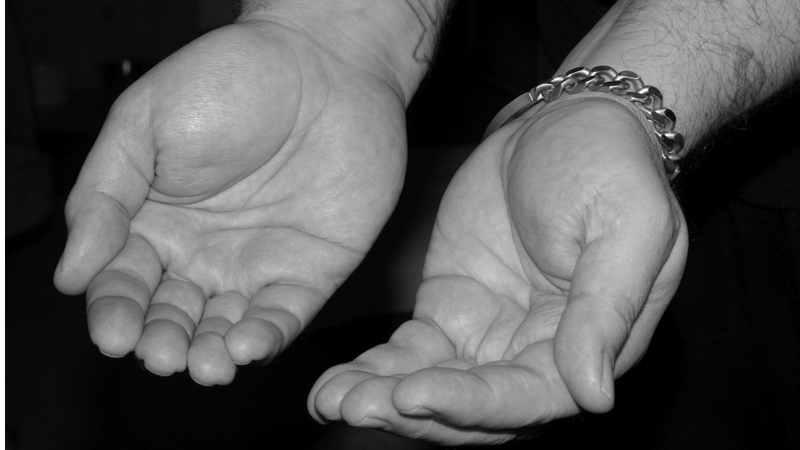 Armoedebestrijding op de vierkante centimeter